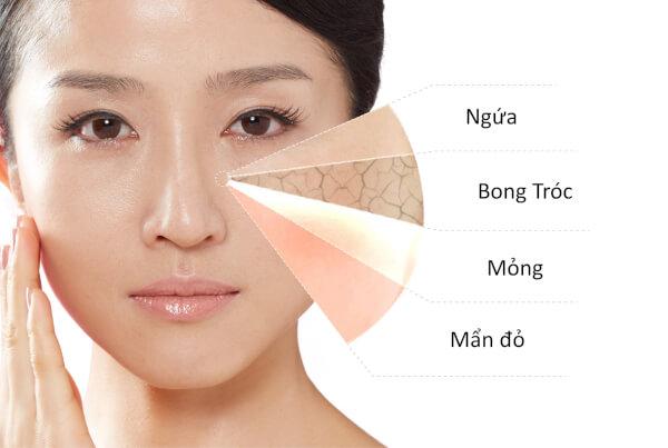 Có rất nhiều nguyên nhân dẫn đến da bị khô