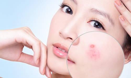 Có nhiều nguyên nhân dẫn tới da mụn