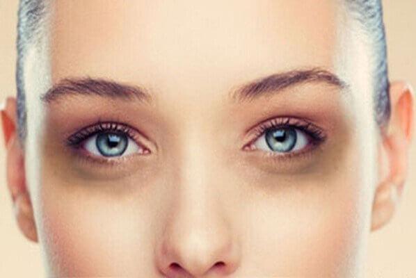 Những quầng thâm và bọng mắt gặp khi chúng ta nghỉ ngơi không khoa học