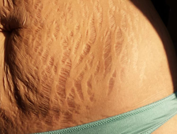 Rạn da sau sinh mổ do đứt gãy của các sợi liên kết làm cấu trúc biểu bì lúc lỏng lẻo