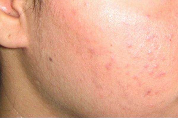 Mụn đầu trắng hoặc mụn đầu đen được coi là tình trạng mụn nhẹ.