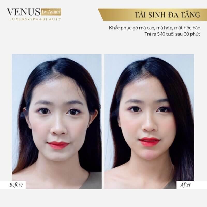 Khách hàng thực hiện Tái sinh đa tầng tại Phòng khám thẩm mỹ Venus by Asian