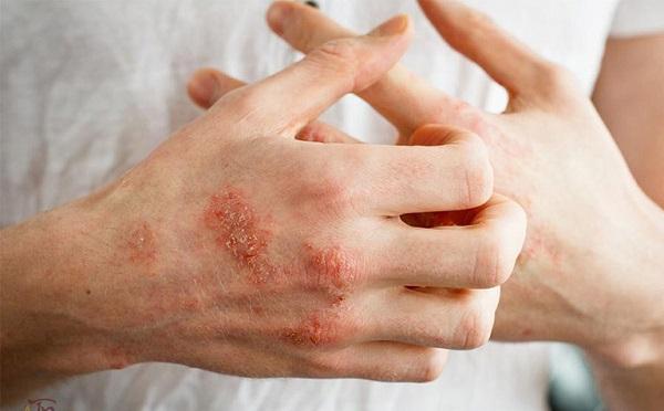 Chàm là một bệnh viêm da mãn tính