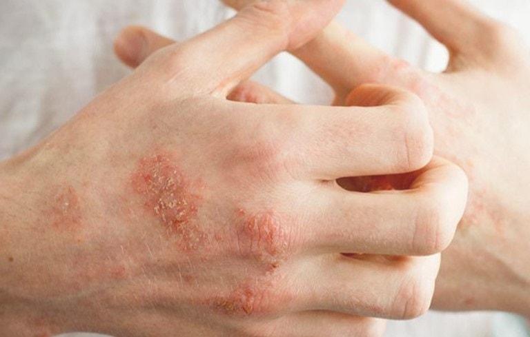 Đây là một tình trạng da bị viêm, ngứa, phát ban và đỏ