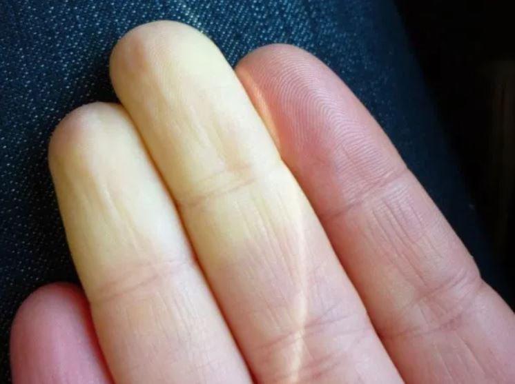 Bệnh ảnh hưởng đến các mạch máu nhỏ cung cấp máu cho ngón tay