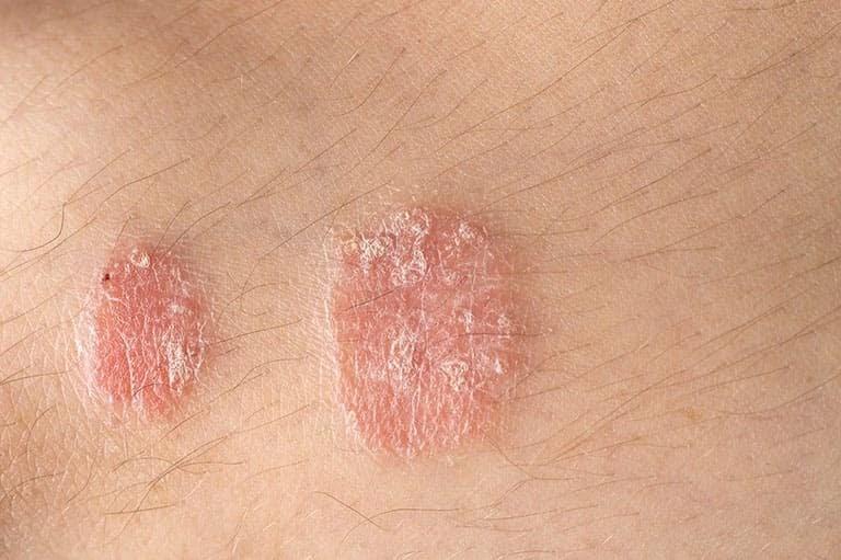 Bệnh vảy nến khó có thể điều trị dứt điểm