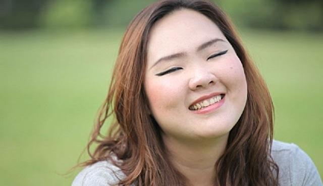 Béo toàn thân ở người trưởng thành, bao gồm cả việc béo mặt, mặt nhiều mỡ