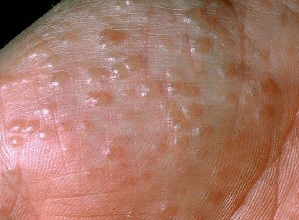 Hiện nay có rất nhiều bệnh lý về da