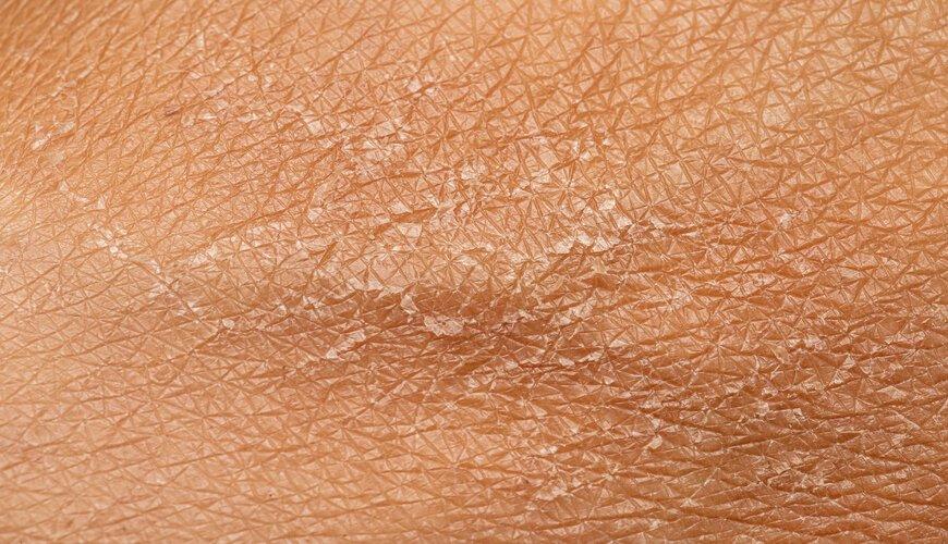 Da khô cũng là một nguyên nhân phổ biến gây ra ngứa da.