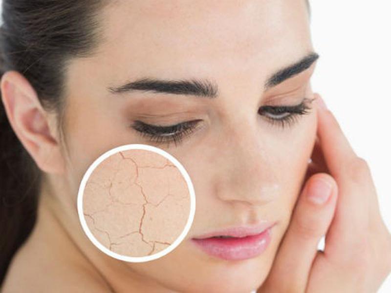 Da bị nứt nẻ bong tróc là bệnh lý ngoài da