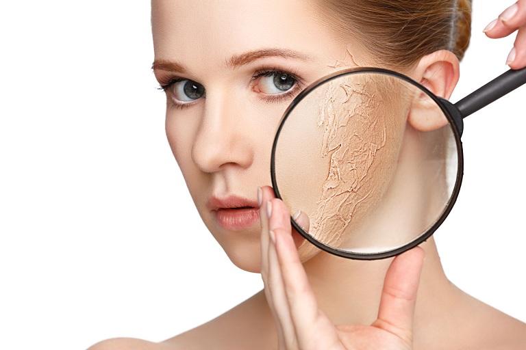 Da mặt bị nứt nẻ bong tróc là khi làn da bị mất đi các lipid tự nhiên