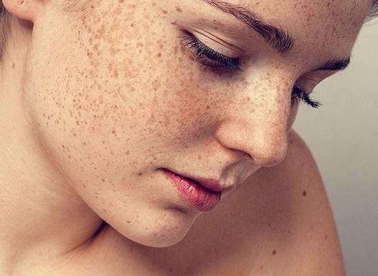 Nám, tàn nhang thực chất là do các sắc tố melanin dưới da phát triển bất thường