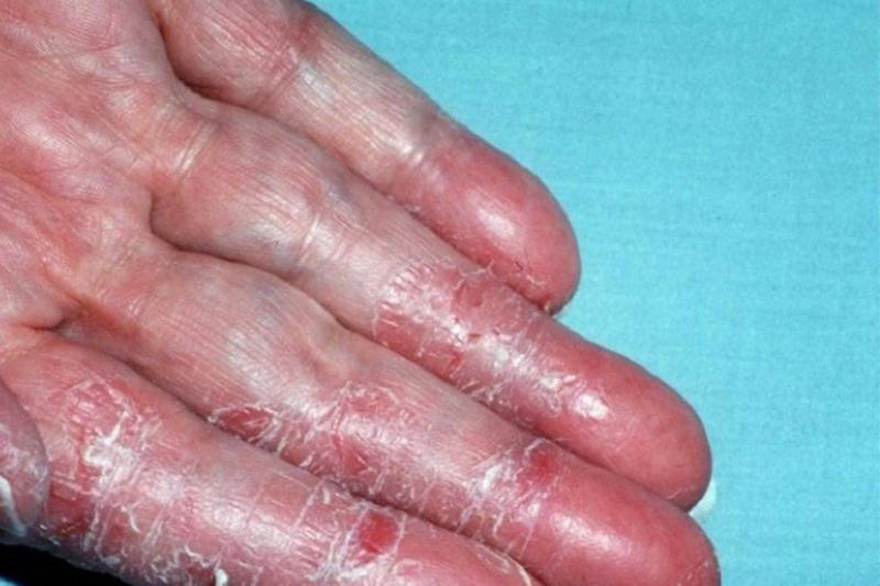 Có rất nhiều nguyên nhân dẫn đến da tay bị khô nứt chảy máu