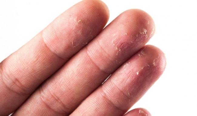 Bệnh khô nứt da tay là bệnh không gây nguy hiểm đến tính mạng con người