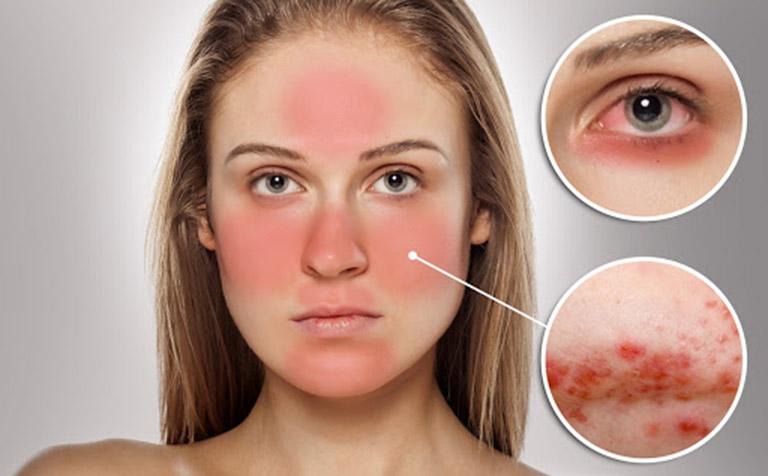 Dị ứng do làn da phản ứng với thành phần hóa học có trong sản phẩm dưỡng da