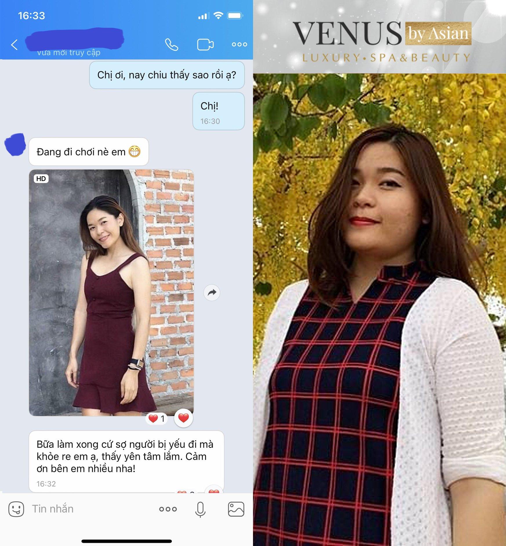 Hàng trăm khách hàng đã trải nghiệm dịch vụ giảm béo Đa tầng tại Venus by Asian