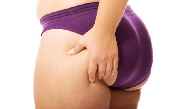 Tình trạng mỡ tích tụ ở mông sau sinh