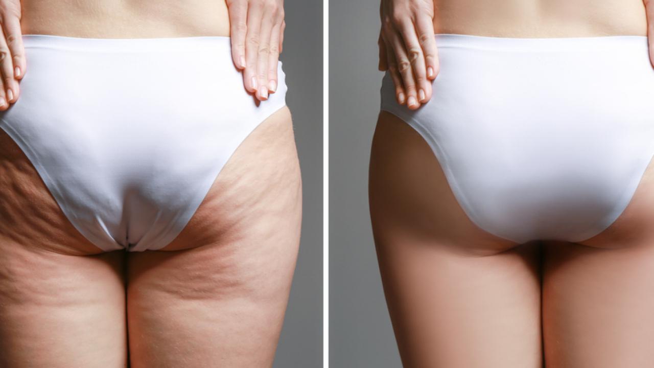 Khoảng 2 - 3 tháng sau khi sinh là thời điểm thích hợp để áp dụng các cách giảm mỡ mông sau sinh.