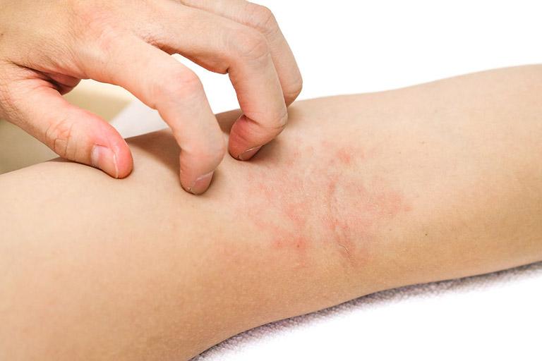 Điều trị ngứa da cơ địa cần có sự kết hợp chặt chẽ giữa cả bác sĩ, người bệnh