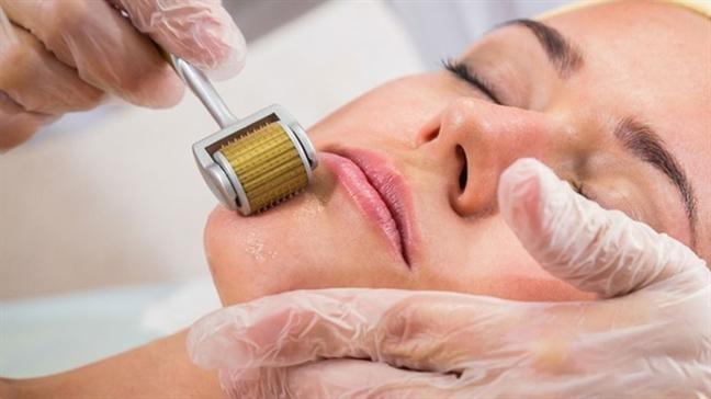 Lăn kim trị sẹo rỗ là phương pháp sử dụng các đầu kim nhỏ tác động trực tiếp vào vùng da sẹo