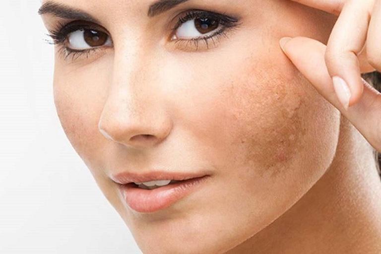 Nám da dễ bi lan rộng và rất  khó điều trị