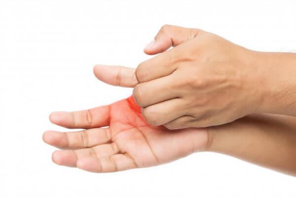 Ngứa da tay do nhiều yếu tố, nguyên nhân tạo nên