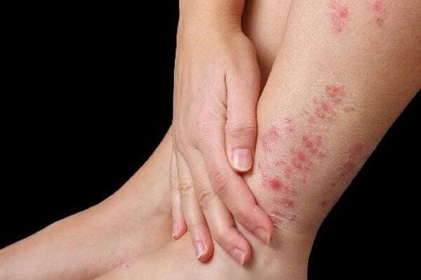 Ngứa da chân: Nguyên nhân và tất cả những cách điều trị nhanh nhất