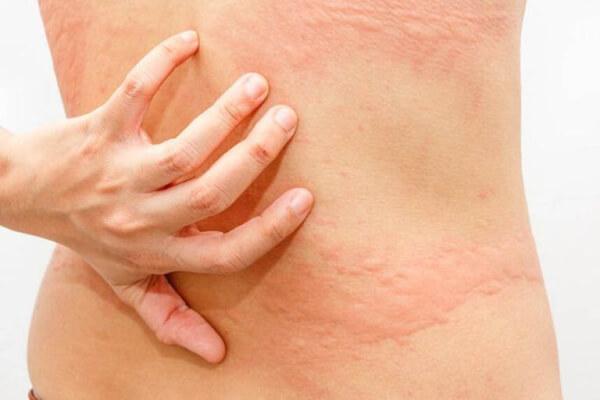 Ngứa da lưng có nguy cơ bạn bị mắc những bệnh da liễu, bệnh lý về gan, thận,...
