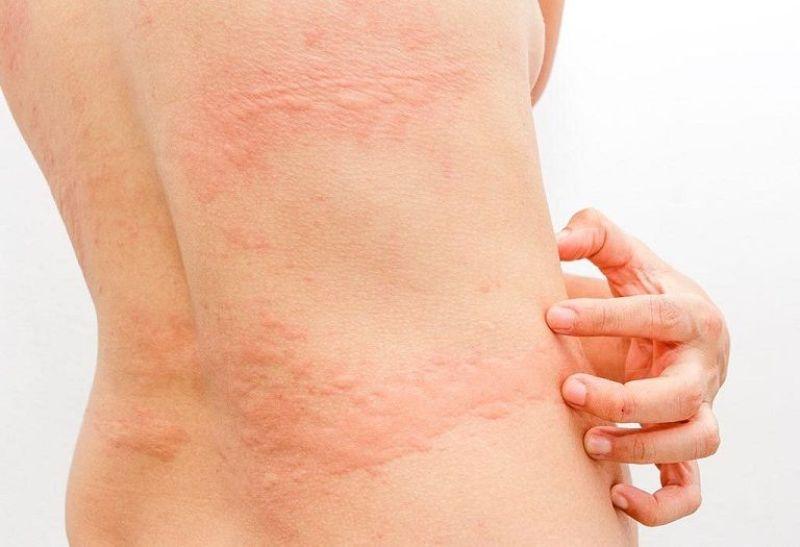 Ngứa da sau tắm do một trong nhiều nguyên nhân gây lên