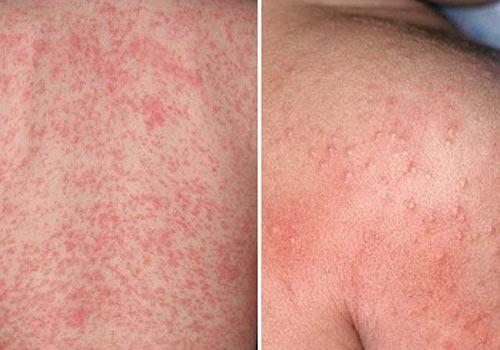 Nổi rôm sảy do da đã bị nhiễm khuẩn, mồ hôi bị ứ đọng trong ống tuyến bài tiết