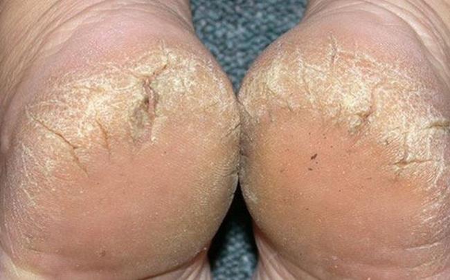 Nứt da gót chân là bệnh ngoài da