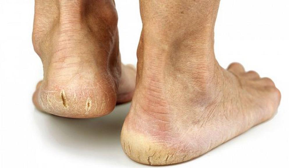 Bạn có thể dễ dàng phát hiện và nhìn thấy bằng mắt thường khi nứt da mắt cá chân