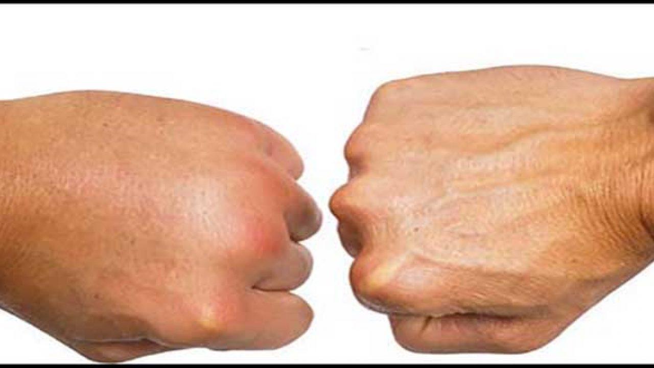 Phù mạch bạch huyết ảnh hưởng đến các ngón tay và làm các ngón tay bị nhăn.