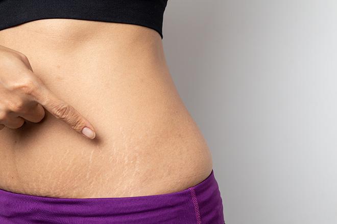 Rạn da không phải là 1 bệnh lý nghiêm trọng và có thể chữa được