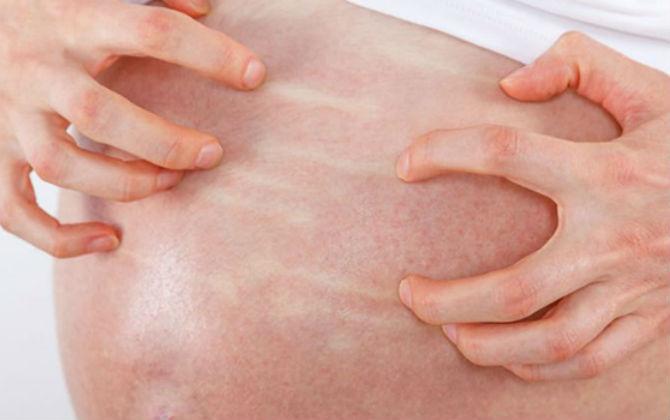 Rạn da trong thời gian đầu sẽ bị ngứa và có thể kéo dài liên tục trong thời gian dài