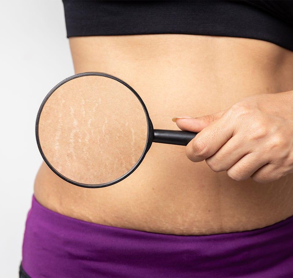 Rạn da thường hay xuất hiện ở vùng mông, bụng, đùi, bắp chân, bắp tay