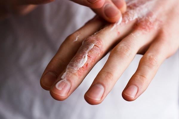Bôi thuốc giúp giữ độ ẩm, tái tạo lại làn da mới