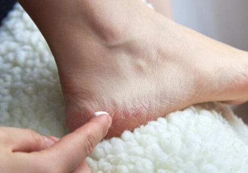 Sử dụng sản phẩm đặc trị nứt gót chân khi không có dấu hiệu thay đổi tích cực