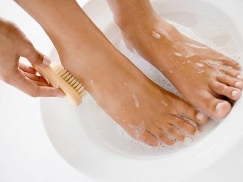 Vệ sinh gót chân để chấm dứt tình trạng xấu xí này của gót chân