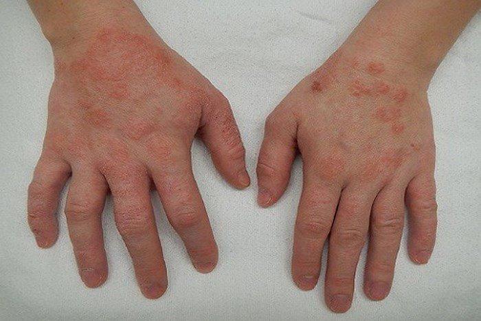 Bàn tay là nơi chứa nhiều vi khuẩn nhất và dễ bị tổn thương