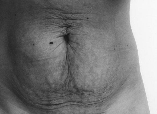 Thay đổi nội tiết tố là 1 trong những nguyên nhân da bụng bị đen sau sinh