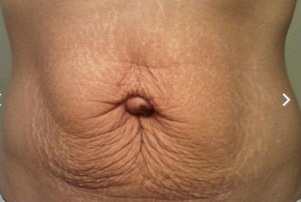 Nếu thâm nhẹ chỉ trong vòng từ 3 – 6 tháng là lấy lại được làn da trắng sáng, mịn màng