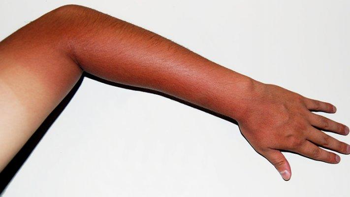 Tia cực tím từ ánh nắng mặt trời tác động lớn lên da