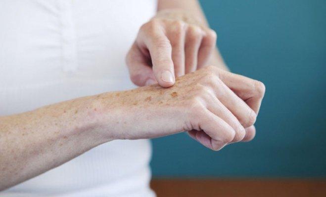 Da cánh tay bị đen là khi lượng sắc tố melanin được sản sinh quá mức