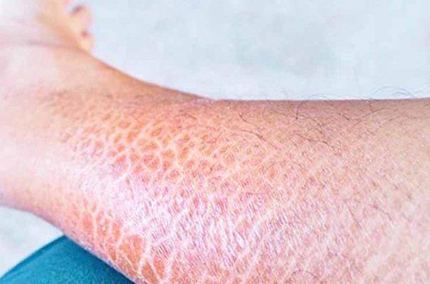 Da chân giống da rắn không phải bệnh lý ác tính