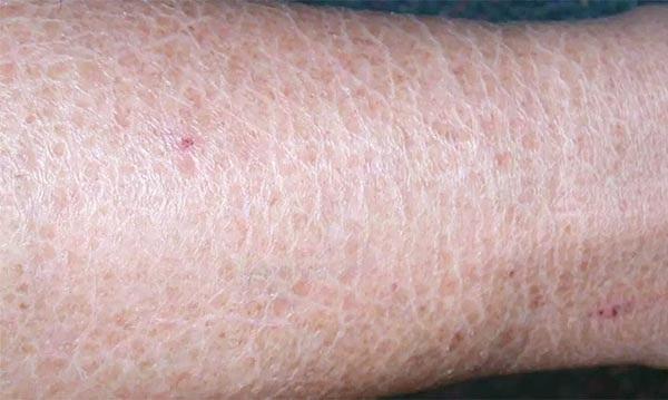 Da chân giống da rắn hay còn gọi là da vảy cá