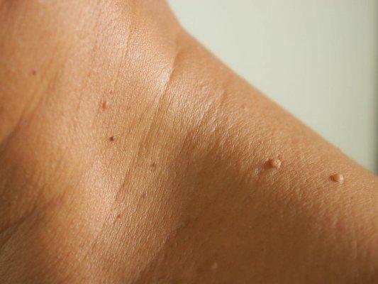 Mụn thịt là những nốt mụn nhỏ màu trắng xuất hiện trên da