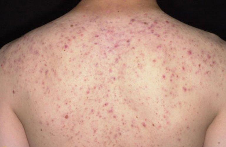 Cách điều trị da lưng nổi mụn nhanh tại nhà đã được kiểm chứng