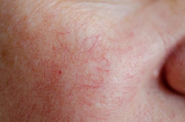 Da mặt bị lộ mạch máu là tình trạng hoạt động của hệ tuần hoàn đang gặp vấn đề.
