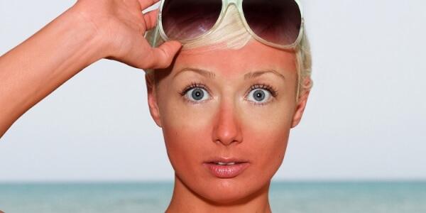 Cháy nắng là một phản ứng của làn da trước sự tấn công của tia cực tím